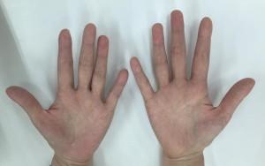 掌蹠膿疱症漢方服用2ヵ月後