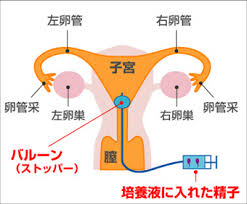 卵管内人工授精