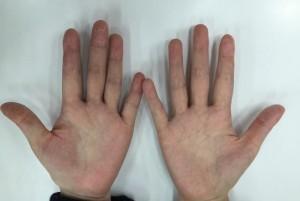 掌蹠膿疱症漢方服用1ヵ月後