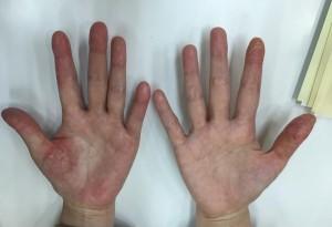 掌蹠膿疱症漢方服用前